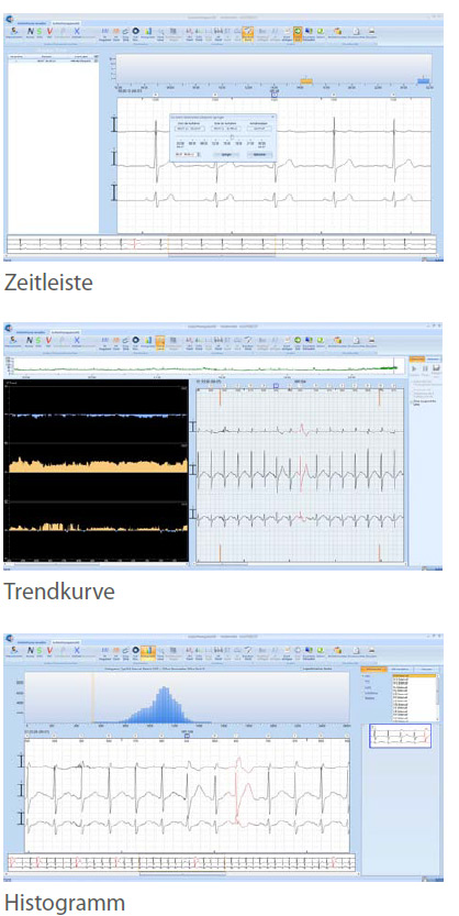 Cardio Trak Langzeit EKG Software